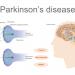 comparison of normal brain and parkinson's brain