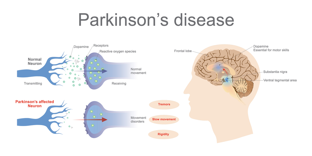 comparison of normal brain and parkinson's brain